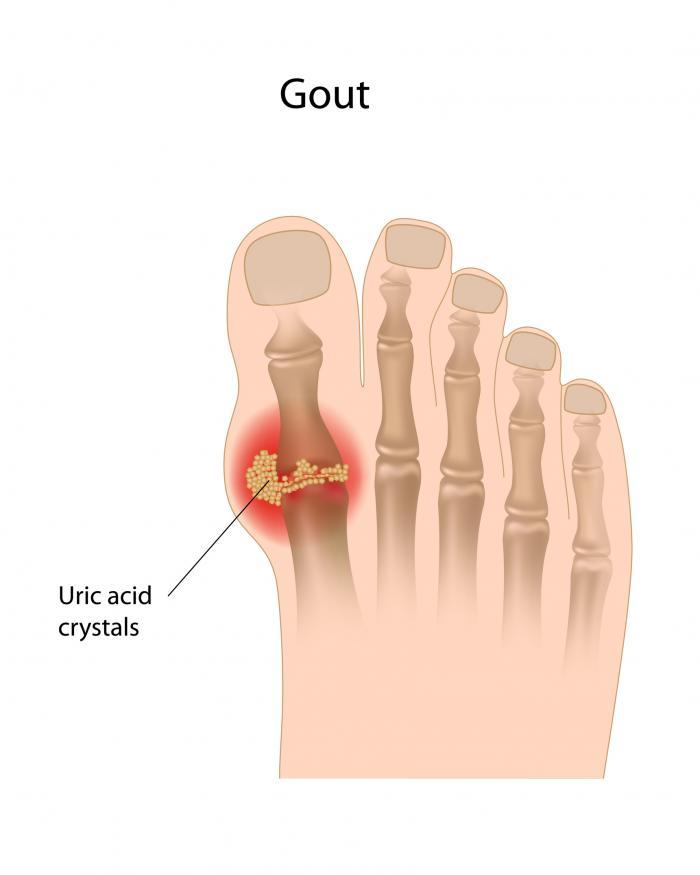 Gout Fotolia_45335859_L